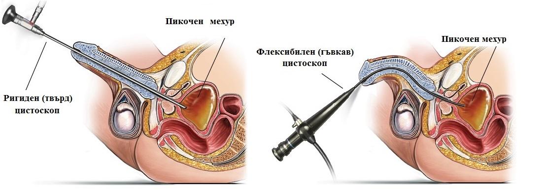 цистоскопия, флексибилен цистоскоп